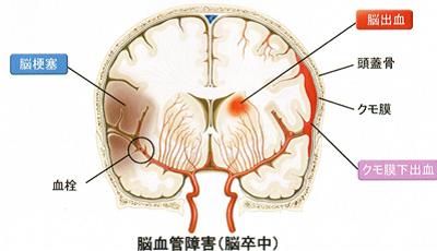 瘤 脳 動脈